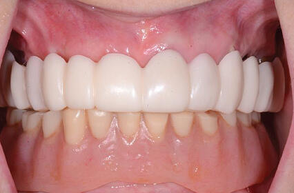 Snap On Smile Restorative Dental Implant Surgery